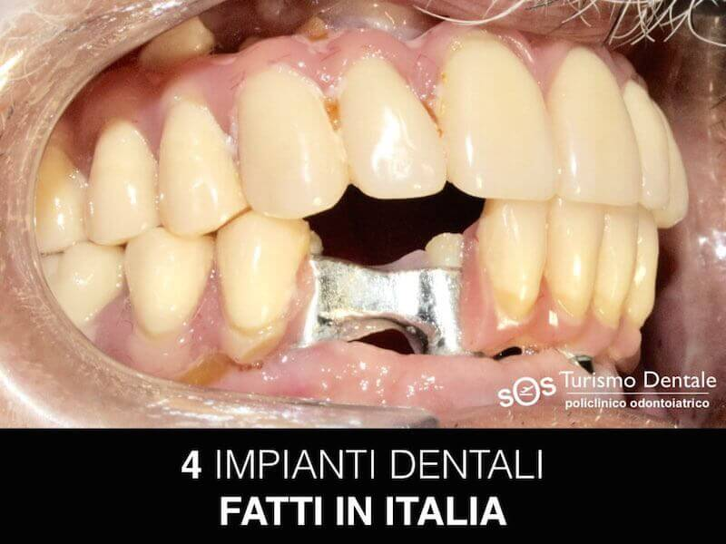 ALL-ON-4-ITALIA-ROTTO
