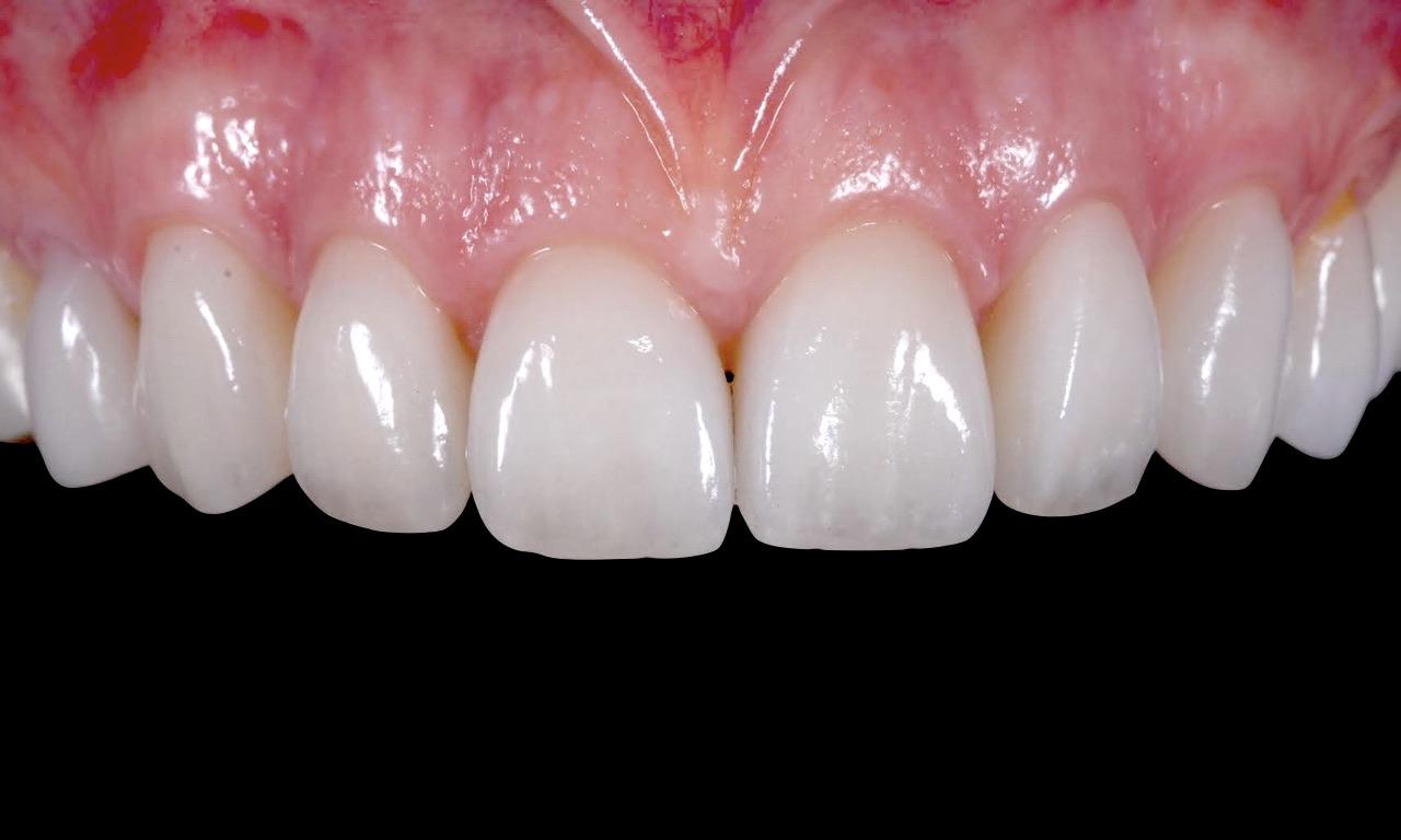 denti-zirconio-moldavia