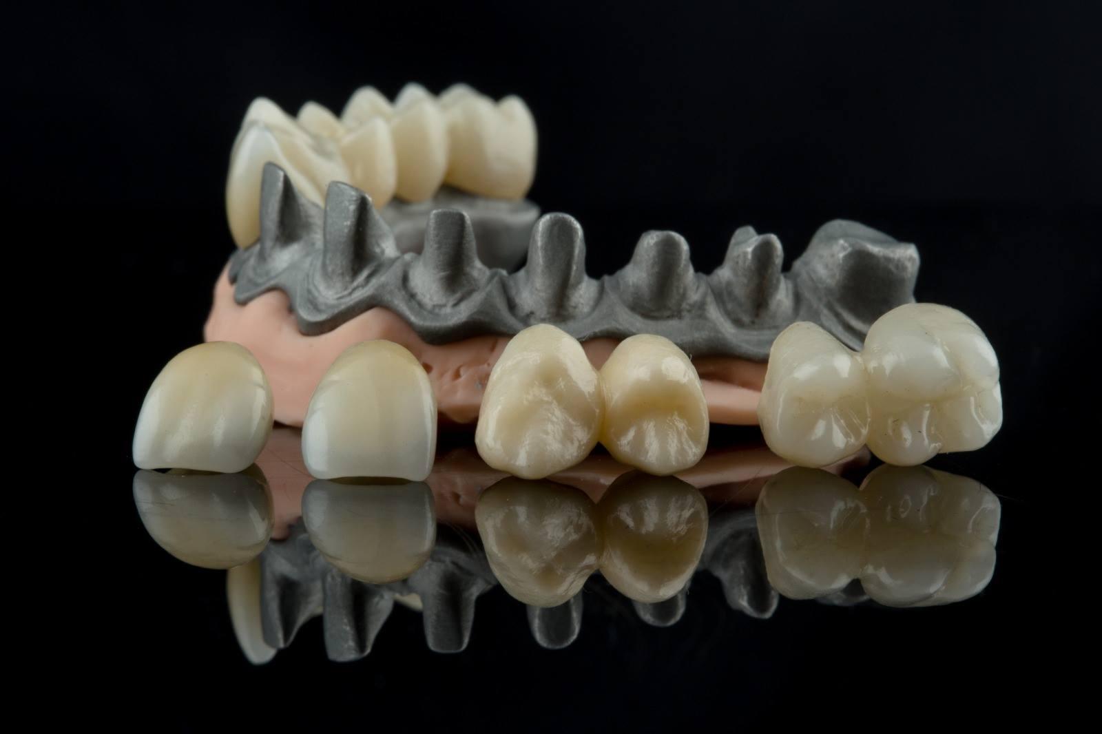denti zigomatici