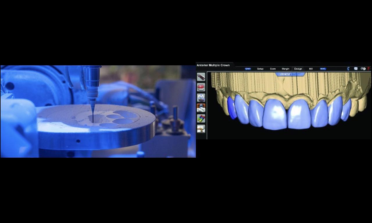 produzione-capsule